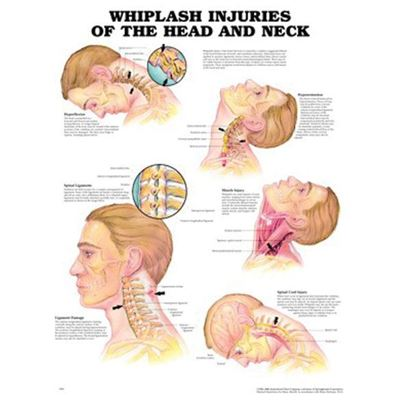 Picture of WHIPLASH INJURIES CHART