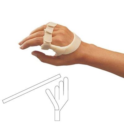 Picture of ORFIT ULNAR DRIFT SPLINT