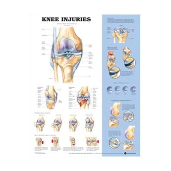 Picture of KNEE INJURIES CHART